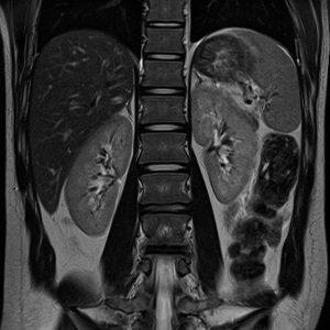 Duo Diagnósticos Exames em Rio das Ostras RJ - Ressonancia Magnetica De Alto Campo7